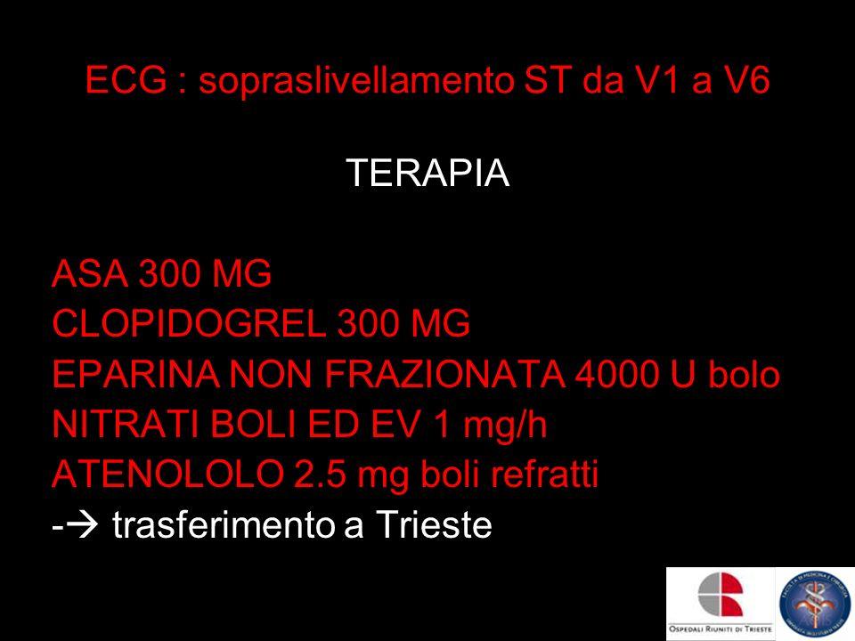 ECG : sopraslivellamento ST da V1 a V6