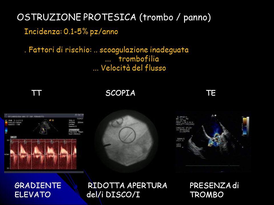 OSTRUZIONE PROTESICA (trombo / panno)
