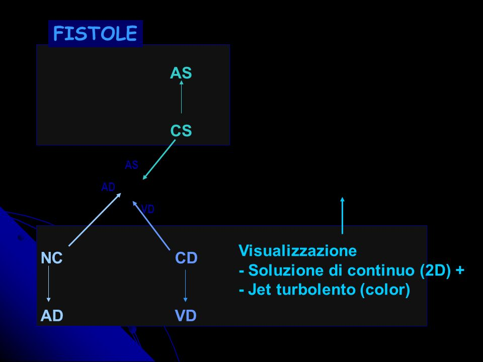 FISTOLE AS CS Visualizzazione NC CD - Soluzione di continuo (2D) +