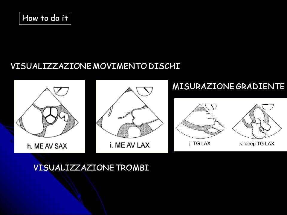 How to do it VISUALIZZAZIONE MOVIMENTO DISCHI MISURAZIONE GRADIENTE VISUALIZZAZIONE TROMBI