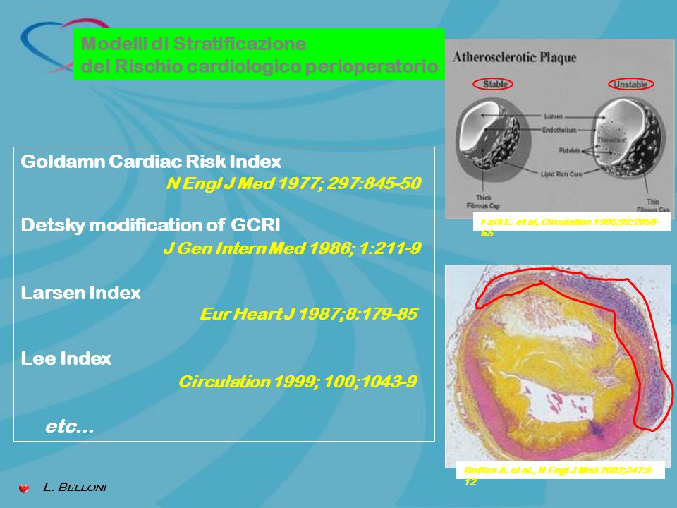 Modelli di Stratificazione del Rischio cardiologico perioperatorio