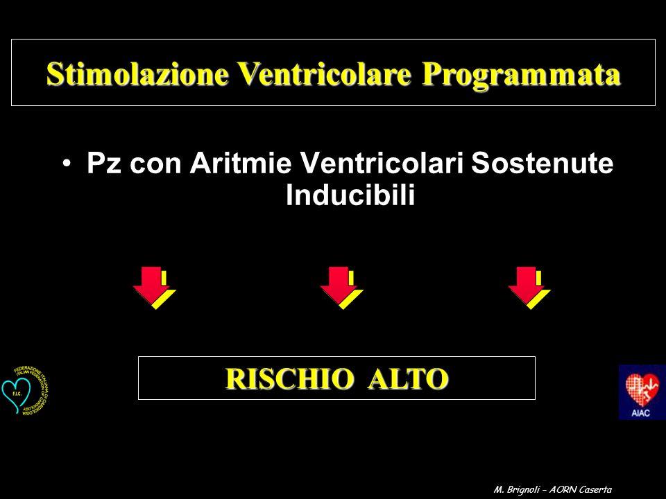 Stimolazione Ventricolare Programmata