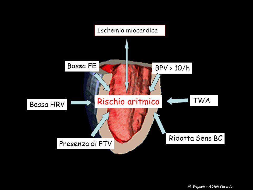 Rischio aritmico Bassa FE BPV > 10/h TWA Bassa HRV Ridotta Sens BC
