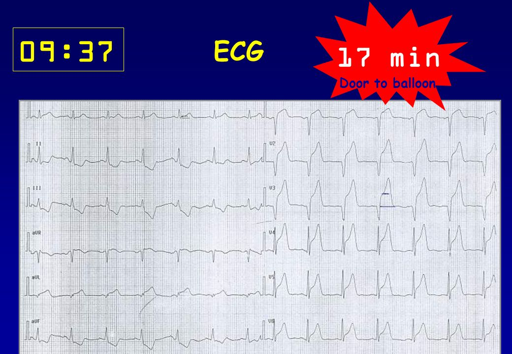 09:37 ECG 17 min Door to balloon