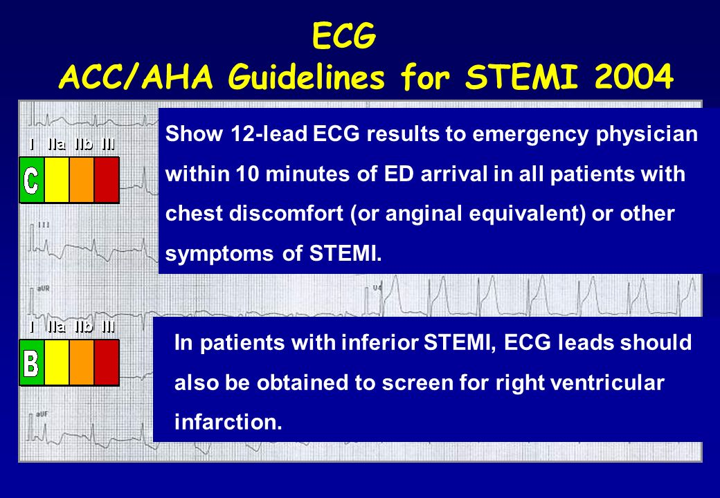 ACC/AHA Guidelines for STEMI 2004