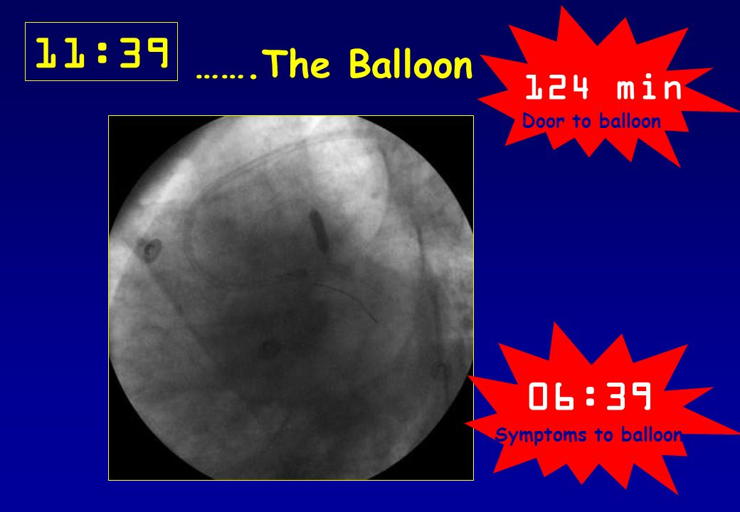 124 min Door to balloon 11:39 …….The Balloon 06:39 Symptoms to balloon