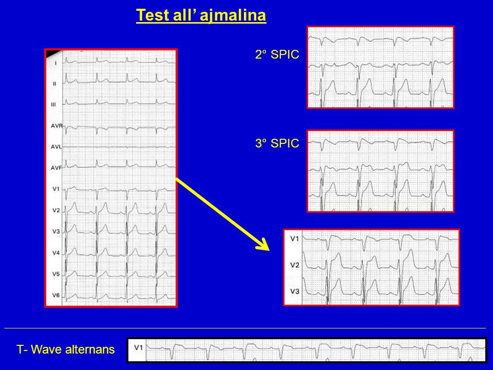 Test all' ajmalina 2° SPIC 3° SPIC T- Wave alternans
