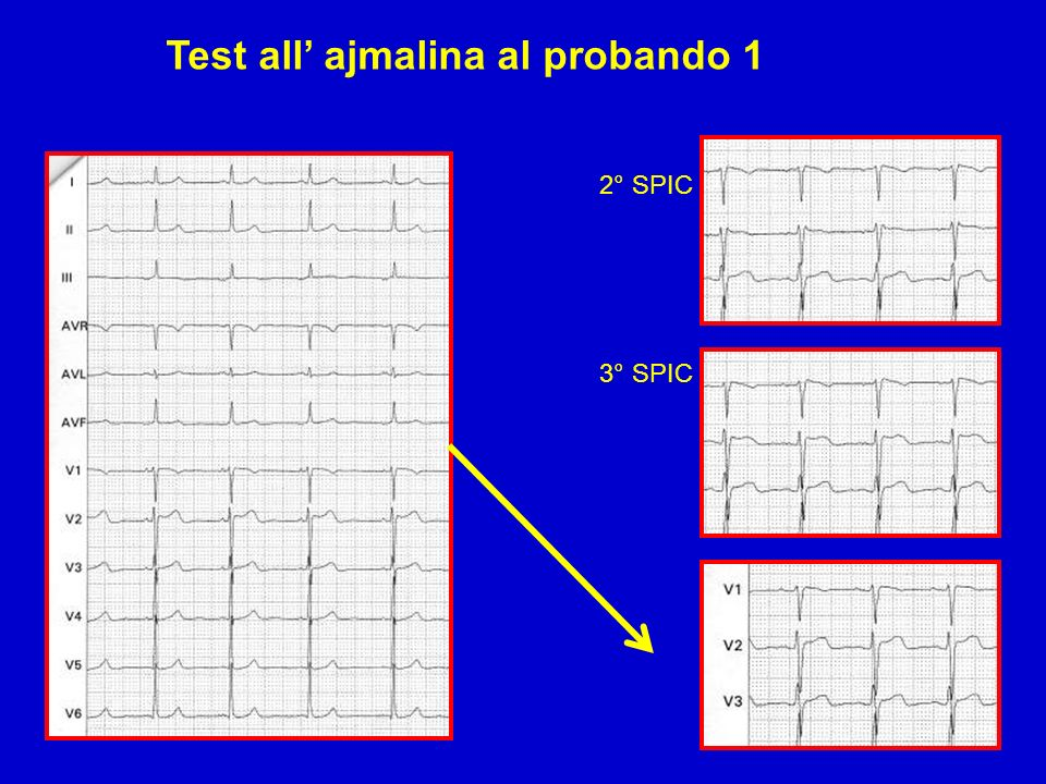 Test all' ajmalina al probando 1