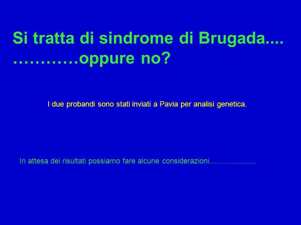 Si tratta di sindrome di Brugada.... …………oppure no