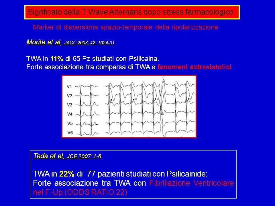 Signficato della T Wave Alternans dopo stress farmacologico