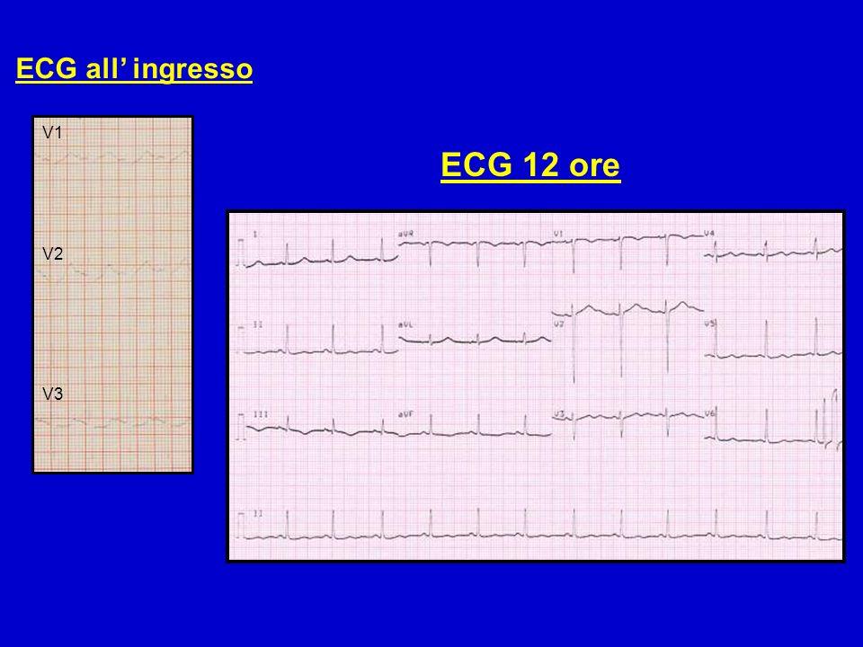 ECG all' ingresso V1 V2 V3 ECG 12 ore