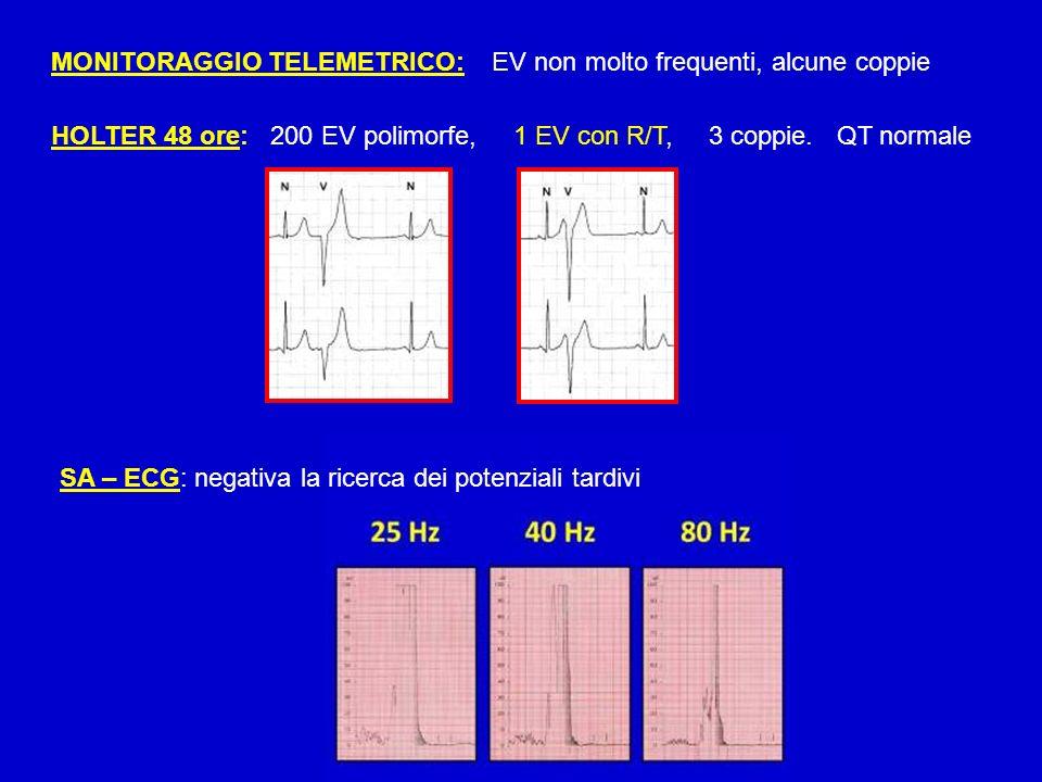 MONITORAGGIO TELEMETRICO: EV non molto frequenti, alcune coppie