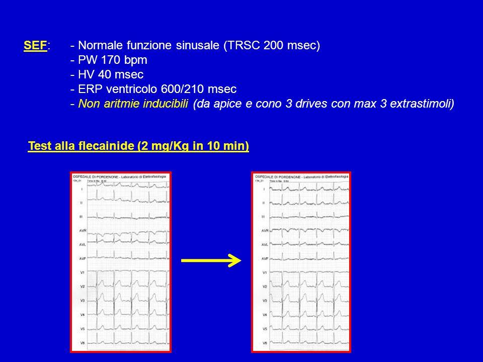 SEF: - Normale funzione sinusale (TRSC 200 msec)