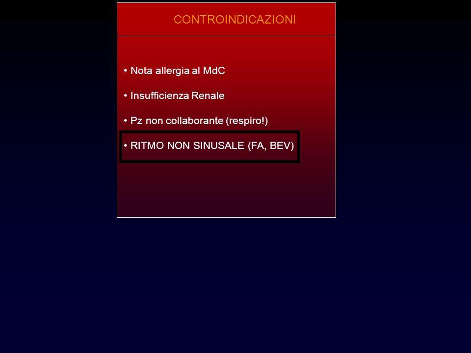 CONTROINDICAZIONI Nota allergia al MdC Insufficienza Renale