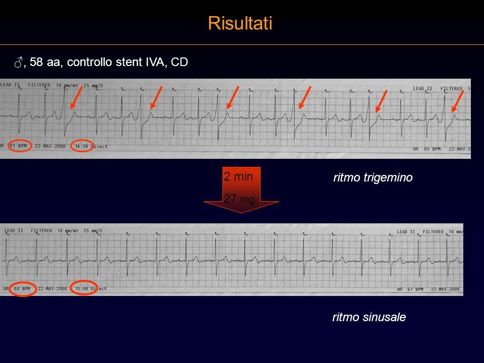 Risultati ♂, 58 aa, controllo stent IVA, CD 2 min ritmo trigemino