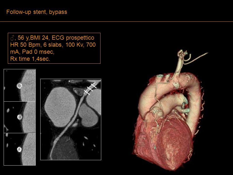 Follow-up stent, bypass