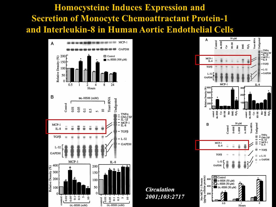 Homocysteine Induces Expression and