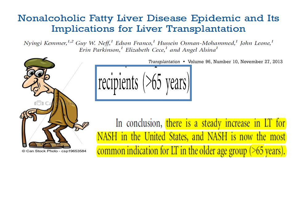 Negli Stati uniti ormai la NASH è diventata la più comune causa di LT, soprattutto nei soggetti con più di 65 anni…ma possiamo esportare questo dato anche alla casistica pediatrica
