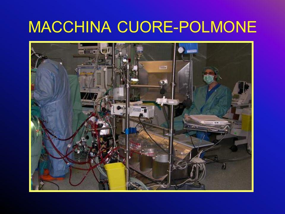 MACCHINA CUORE-POLMONE