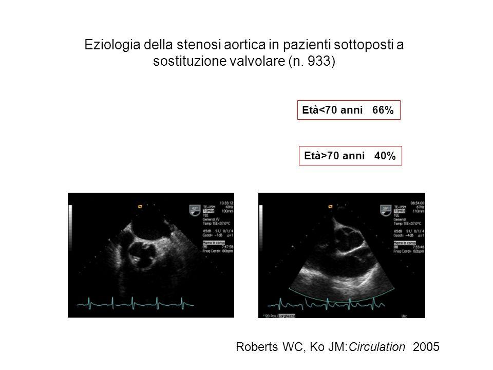 Eziologia della stenosi aortica in pazienti sottoposti a