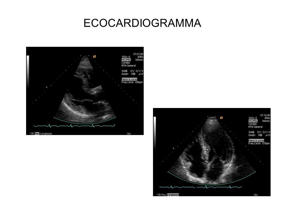 ECOCARDIOGRAMMA Dimensioni 37/22;105/20 FE 80%;Ao 33 atrio 39; Siv 22/16;Vd 31;Area v indic 0,45 cmq/mq press polm 40.