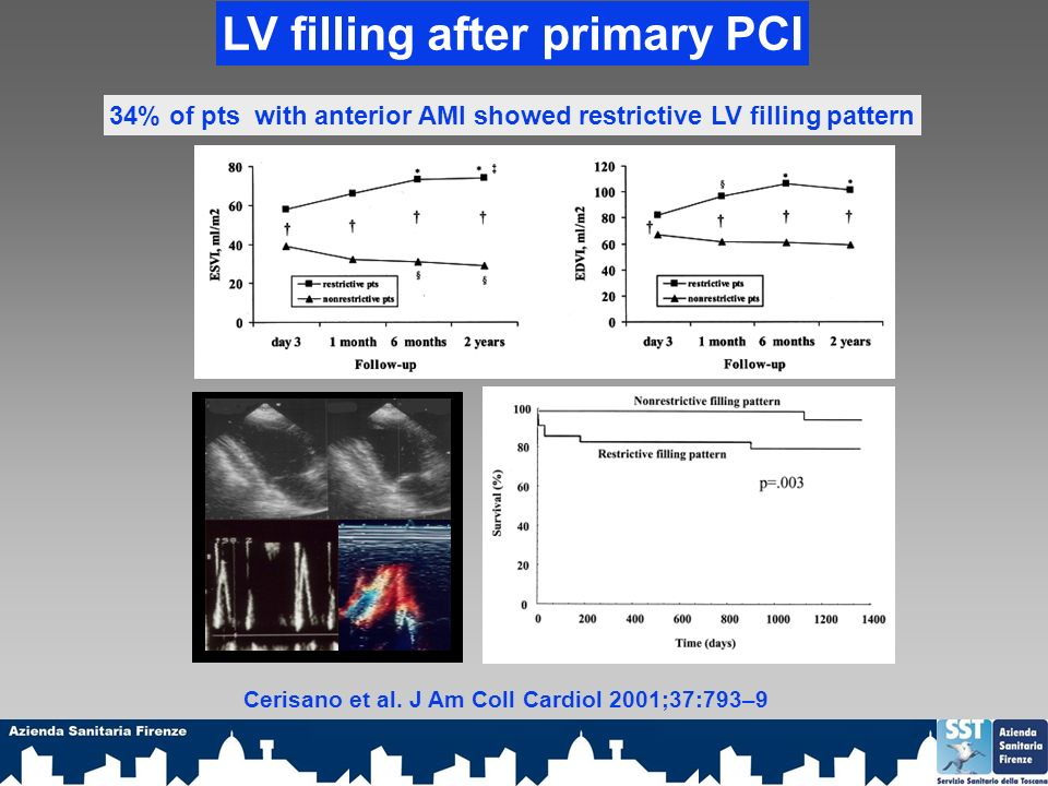 LV filling after primary PCI