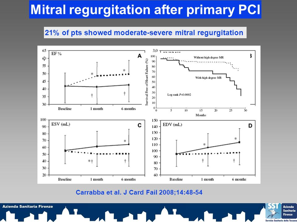 Mitral regurgitation after primary PCI