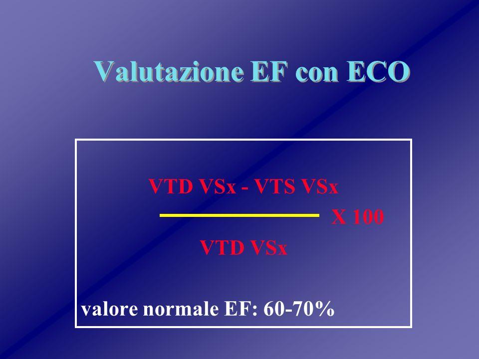 VTD VSx - VTS VSx X 100 VTD VSx valore normale EF: 60-70%