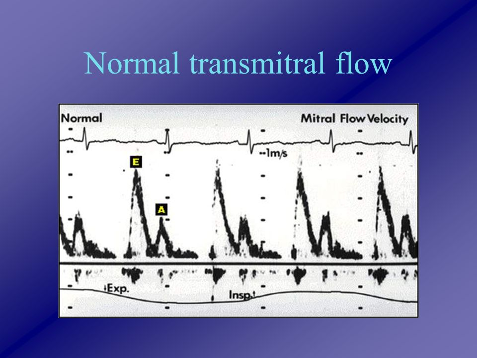 Normal transmitral flow