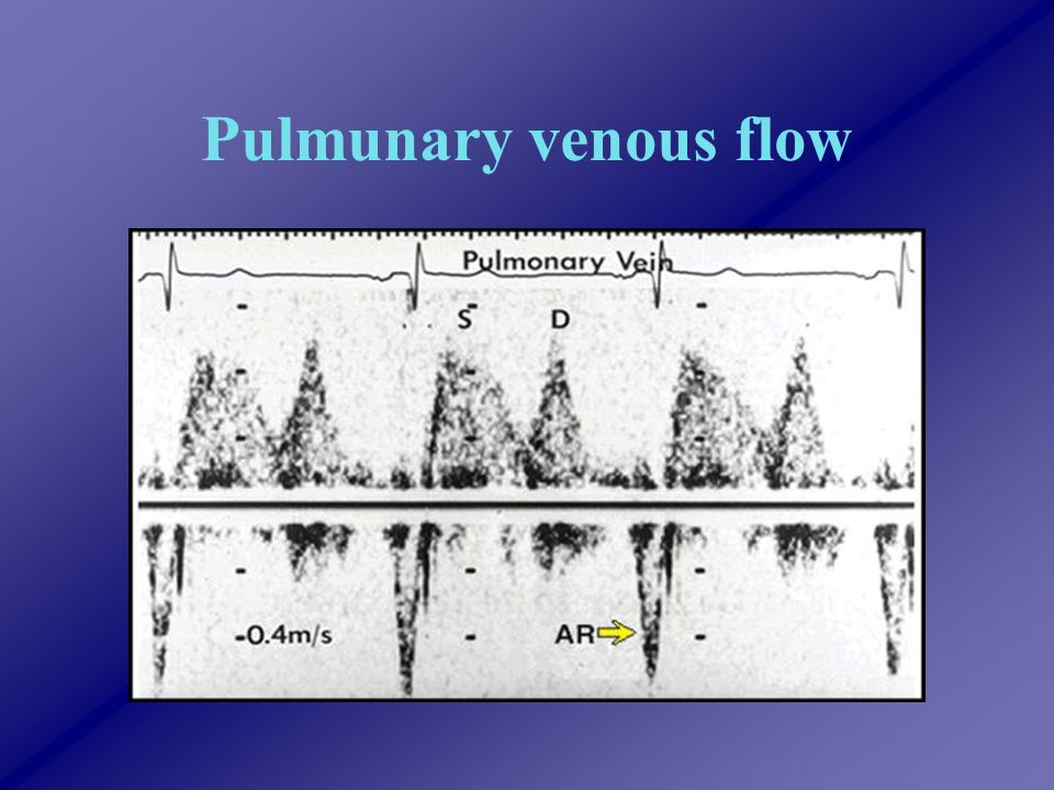 Pulmunary venous flow