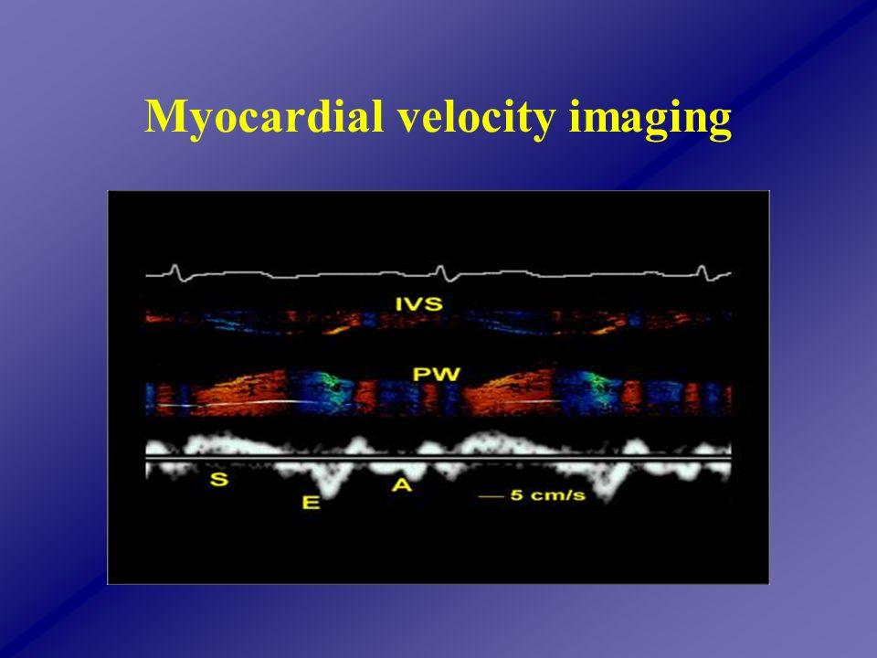 Myocardial velocity imaging