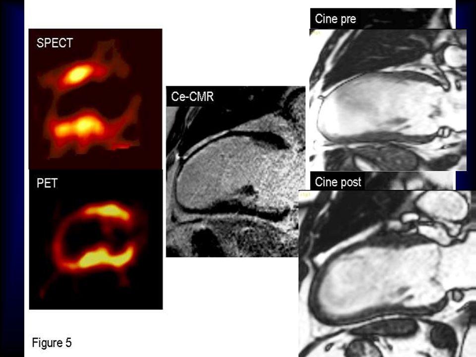 Esempio di paz con discrepanza tra nuclear imaging e RM