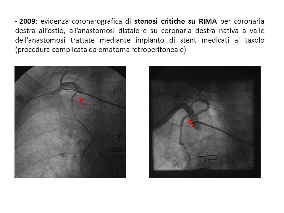 2009: evidenza coronarografica di stenosi critiche su RIMA per coronaria destra all'ostio, all'anastomosi distale e su coronaria destra nativa a valle dell'anastomosi trattate mediante impianto di stent medicati al taxolo (procedura complicata da ematoma retroperitoneale)