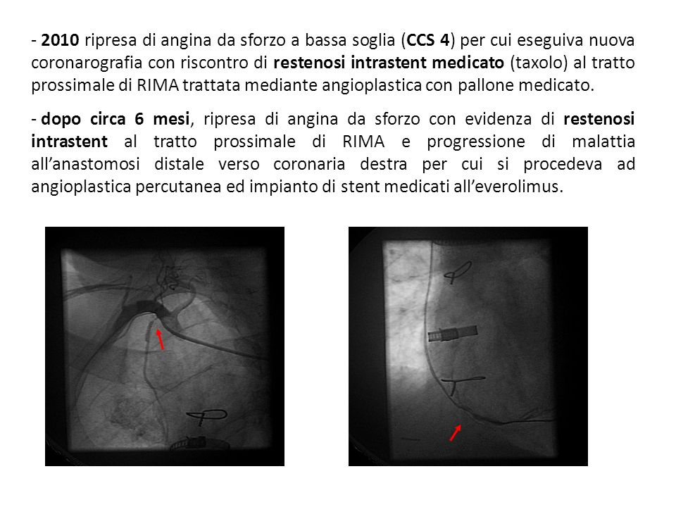 2010 ripresa di angina da sforzo a bassa soglia (CCS 4) per cui eseguiva nuova coronarografia con riscontro di restenosi intrastent medicato (taxolo) al tratto prossimale di RIMA trattata mediante angioplastica con pallone medicato.