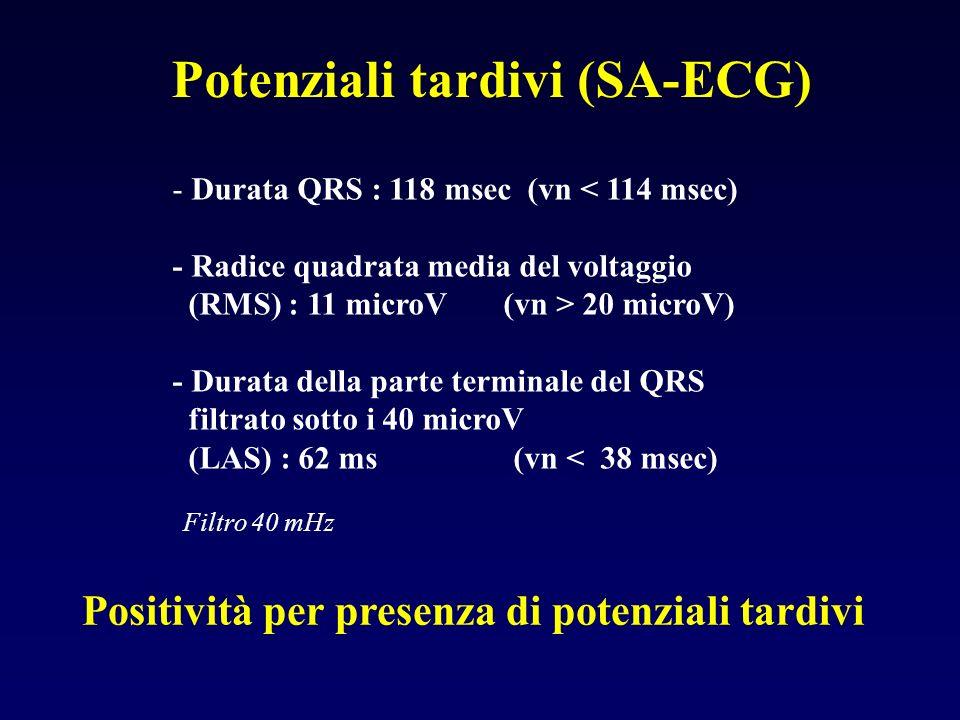 Potenziali tardivi (SA-ECG)
