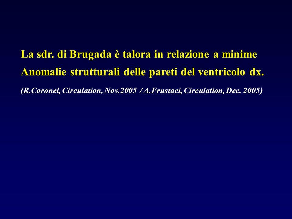 La sdr. di Brugada è talora in relazione a minime