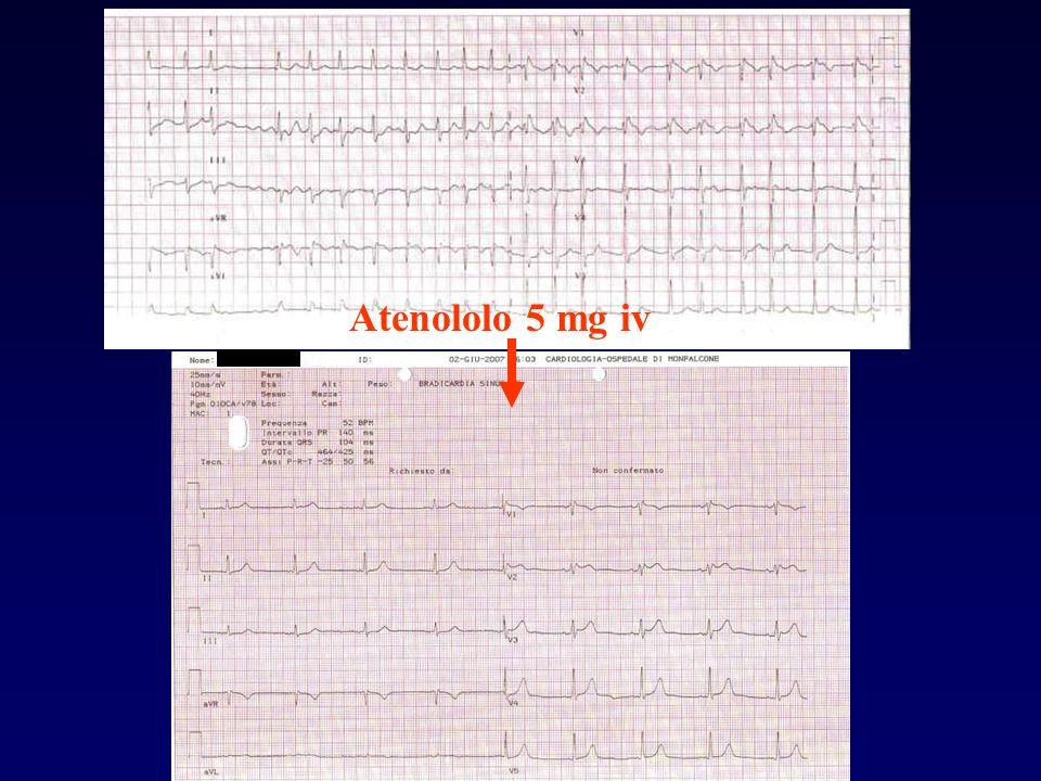 Atenololo 5 mg iv