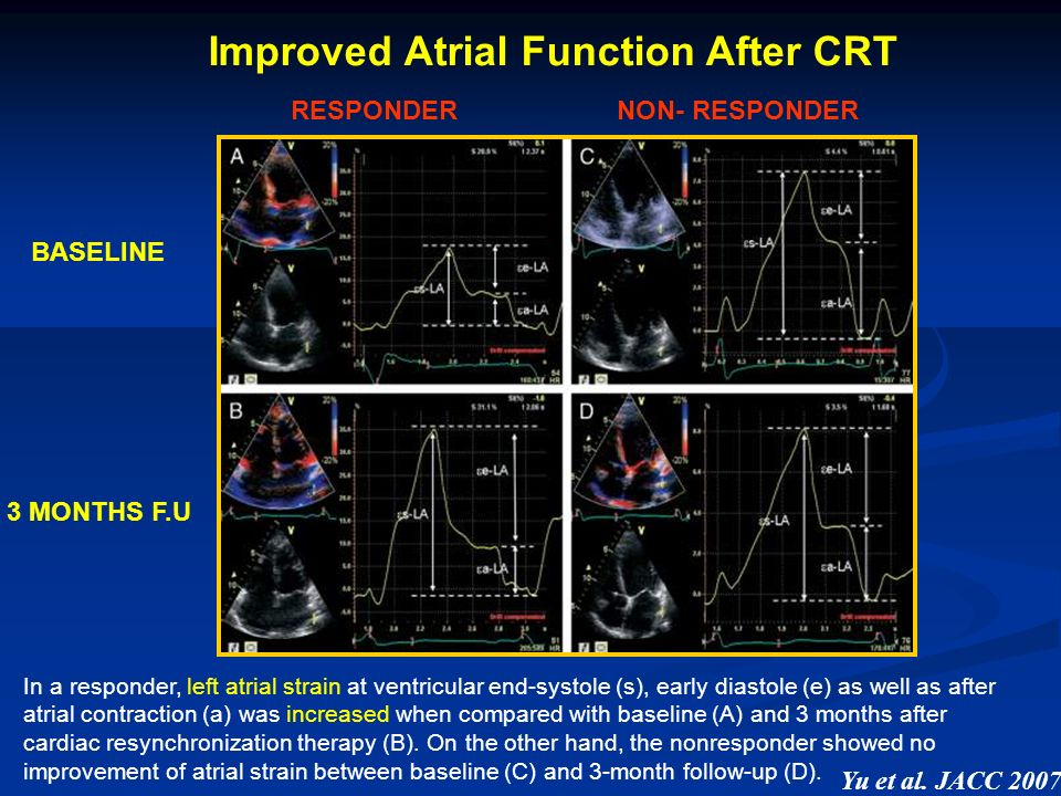 Improved Atrial Function After CRT