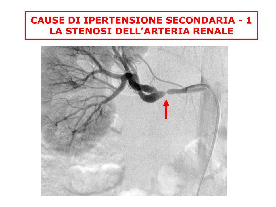CAUSE DI IPERTENSIONE SECONDARIA - 1 LA STENOSI DELL'ARTERIA RENALE