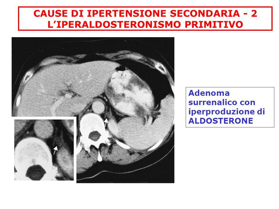 CAUSE DI IPERTENSIONE SECONDARIA - 2 L'IPERALDOSTERONISMO PRIMITIVO