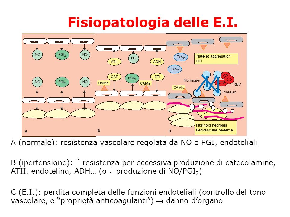 Fisiopatologia delle E.I.