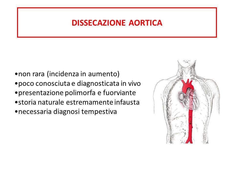 DISSECAZIONE AORTICA non rara (incidenza in aumento)