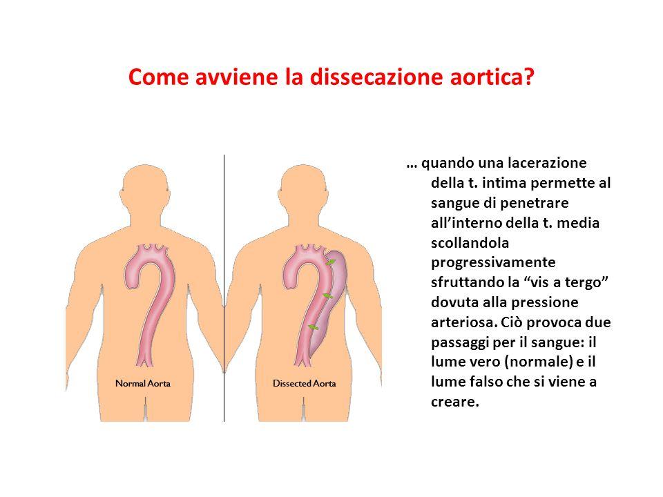 Come avviene la dissecazione aortica