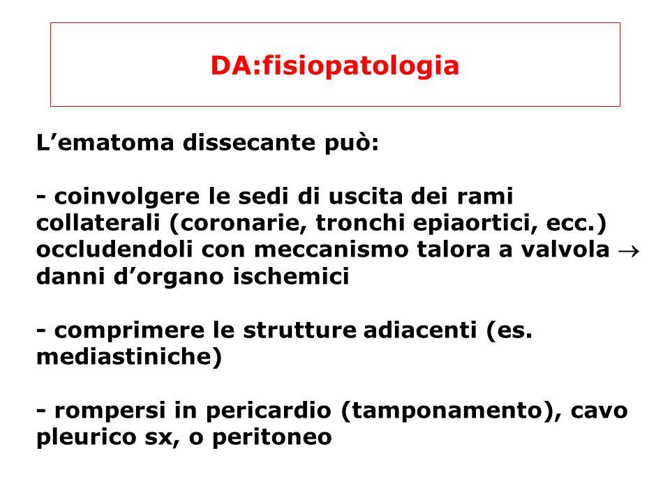 DA:fisiopatologia L'ematoma dissecante può: