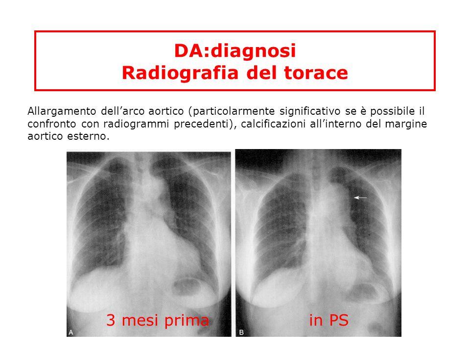 DA:diagnosi Radiografia del torace