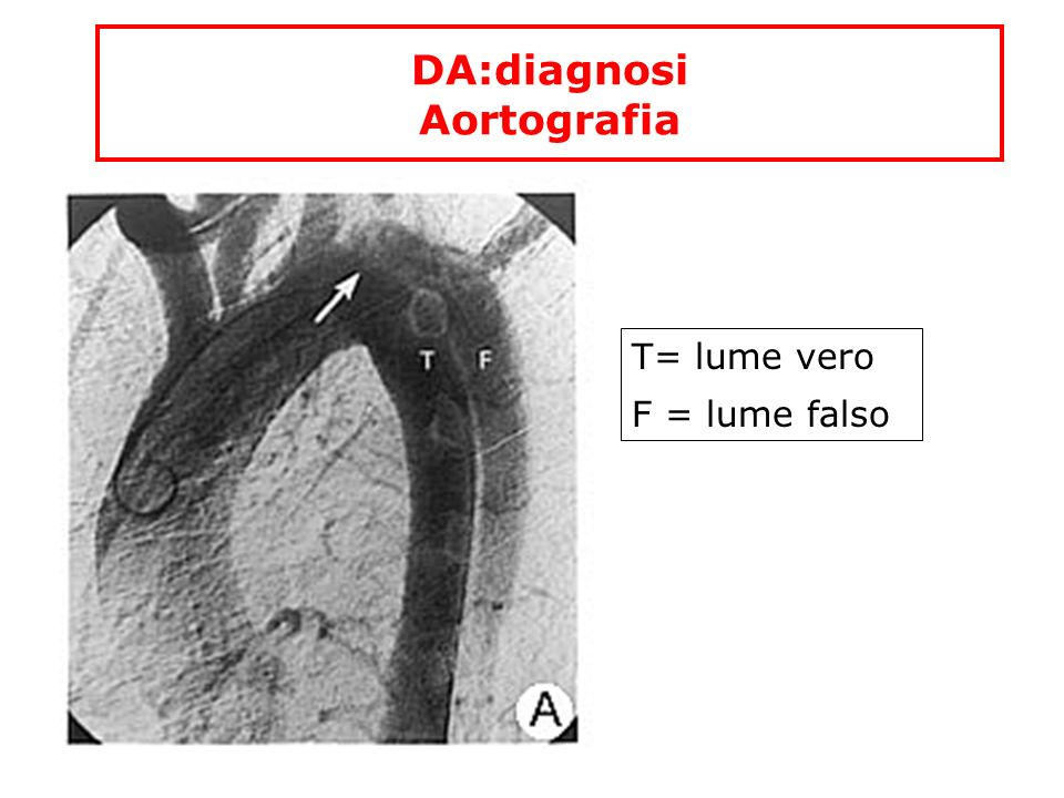DA:diagnosi Aortografia