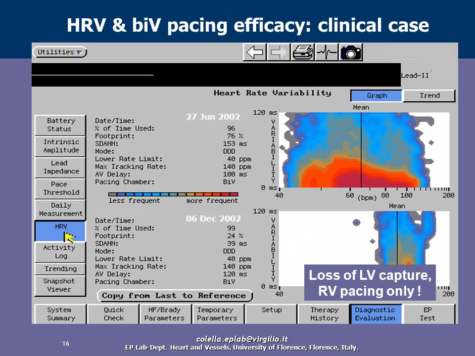 HRV & biV pacing efficacy: clinical case