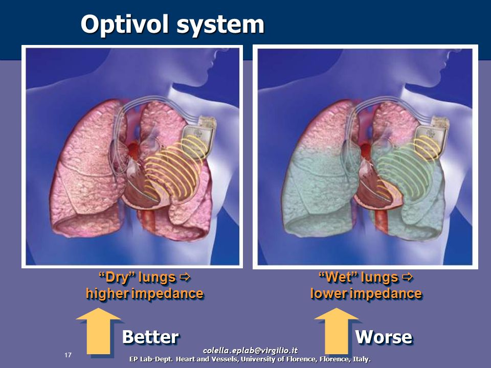 Optivol system Better Worse Dry lungs  higher impedance