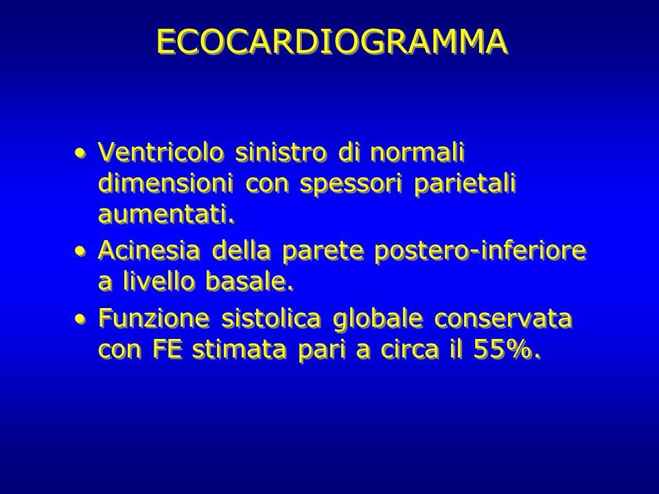 ECOCARDIOGRAMMA Ventricolo sinistro di normali dimensioni con spessori parietali aumentati.