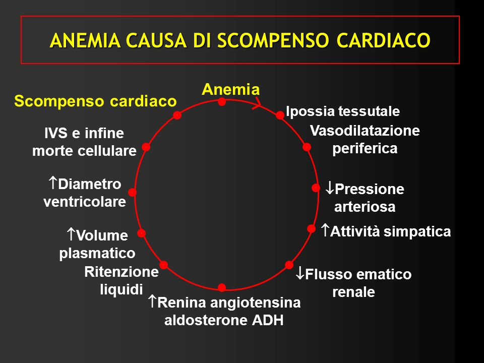 ANEMIA CAUSA DI SCOMPENSO CARDIACO
